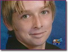 Burn victim, Michael Brewer